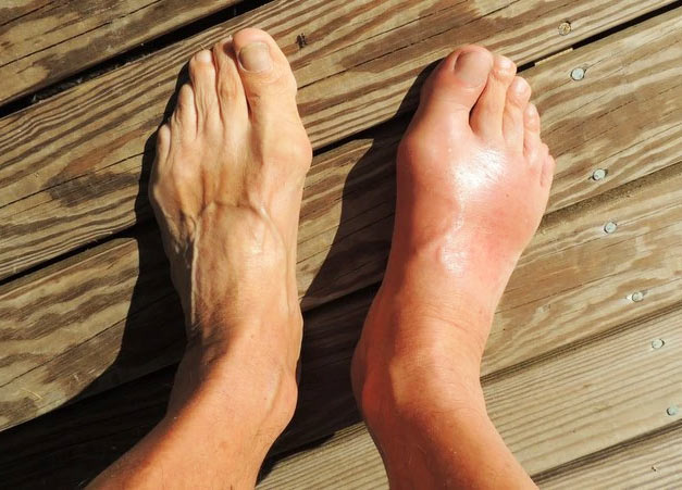 how to treat a foot stress fracture at home